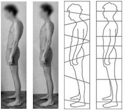 Rolfterapie Před a Po